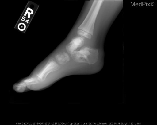 Lateral view of the right foot show multiple bones with hyperostotic regions. No soft tissue manifestations are present.