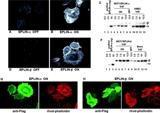 Expression of EPLIN increases actin filaments in MCF-7 cells. (A, B, D, and E) Expression of Flag-EPLIN-α or -β was induced by removing doxycycline from culture media. 72 h after protein induction, cells were fixed and stained with rhodamine-phalloidin to visualize actin filaments. A and D, − induction; B and E, + induction. Digital images were captured at the same exposure time (248 ms for A and B; 308 ms for D and E). (C and F) The levels of EPLIN overexpression in MCF-7 cells were estimated. Varying amounts (2.5–12.5 μg) of protein lysates from MCF-7 cells before and after protein induction, human mammary epithelial cells (HMEC; EPLIN-α positive), and BeWo choriocarcinoma cells (EPLIN-β positive) were fractionated by SDS-PAGE and then immunoblotted with anti-EPLIN antisera. To estimate the absolute level of expression, known amounts (0.5–10 ng) of purified his-EPLIN-α protein were also included in the immunoblot. (G and H) Flag-EPLIN-α or -β expressing MCF-7 cells were stained with rhodamine-phalloidin and the M2 anti-Flag mAb to stain the induced proteins. The increase in actin filaments correlated with the amount of EPLIN expressed in these cells.