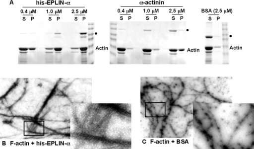 EPLIN cross-links and bundles F-actin. (A) Low speed pelleting assay. Samples containing 10 μM F-actin and 0.4–2.5 μM his-EPLIN-α or 0.4– 2.5 μM α-actinin were centrifuged at 8,000 g for 20 min. The negative control, BSA, was used at 2.5 μM. The supernatant (S) and pellet (P) were analyzed by SDS-PAGE and stained with Coomassie blue. Positions of his-EPLIN-α, α-actinin, and BSA are indicated by filled circles. (B and C) Electron microscopy. 2 μM actin was polymerized with 1 μM his-EPLIN-α (B) or 1 μM BSA (C), negatively stained with uranyl acetate and visualized by electron microscopy. The boxed areas were enlarged (insets) to better illustrate actin filaments.