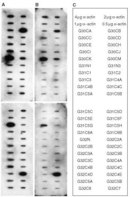 Reverse Northern blot. DNA (2 μg) of the amplified gene fragment of each of the purified clones, along with various amount of α-actin DNA (0.5, 1, 2, or 4 μg) were blotted on Hybond-N+ nylon transfer membrane using the slot-blot apparatus. After denaturation, neutralization and DNA fixation, the filters containing the spotted DNA were hybridized to 32P-labelled cDNA probes. (A) Autoradiogram obtained after Reverse Northern blot hybridization of the spotted cloned gene fragments to a probe prepared by reverse transcription of 30 μg of total RNA purified from the pooled tumour biopsies of six cervical cancer patients. (B) Autoradiogram obtained after Reverse Northern blot hybridization of the spotted cloned gene fragments to a probe prepared by reverse transcription of 30 μg of total RNA purified from the corresponding pooled normal tissue biopsies of the same six cervical cancer employed in (A). (C) The identity and orientation of the cloned gene fragments as spotted on the filter membranes.