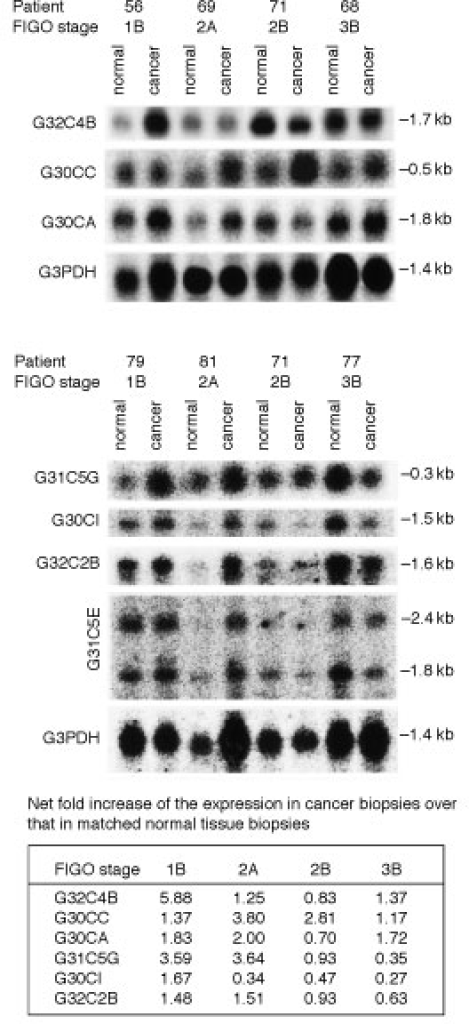 Northern blot analysis employing clones G32C4B, G30CC, G30Ca, G31C5G, G30CI, G32C2B and G31C5E as probes with total RNA obtained from human squamous cell cervical carcinoma biopsies of different FIGO stages and their corresponding adjacent normal tissues. The summary table shows the folds of increase of the cloned cDNA fragments in the various tumour biopsies in comparison to their matched normal counterparts after normalization to G3PDH mRNA.