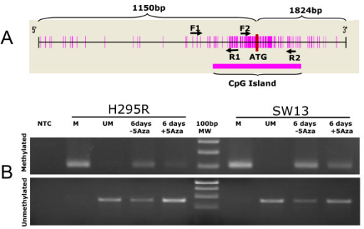 Schematic representation of CpG island in seladin-1 promoter and methylation status in H295R and SW13 cell lines. (Panel A) The large CpG island includes the translation start codon (ATG), spanning from -868 bp to +918 bp. The arrows F1 and R1 indicate primers which did not evidence any methylation sensitive sites. F2 and R2 are primers used for MSP and Q-MSP analysis. (Panel B) Methylation specific PCR performed in H295R and SW13 cell lines. Primers for methylated (upper gel) and unmethylated DNA (lower gel) recognized in both cell lines corresponding methylated and unmethylated seladin-1 promoter sequences. After 6 days of treatment with 5-Aza (+5Aza) we observed a reduction of methylated form in both cell lines in comparison to controls (-5Aza). Conversely, the intensity of bands corresponding to unmethylated DNA increased in intensity, confirming the demethylation of corresponding sequences. (NTC = no template control, MW = molecular weight marker, M = cell line methylated DNA, UM = cell line unmethylated DNA).