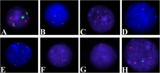 Representative FISH images confirming CNAs in the nuclei of patient samples.(A) Dual-colour FISH signals on nucleus of patient no. 1 confirm trisomy 7 and trisomy 8 in the same clone. Green signals correspond to chromosome 7 centromere, and red signals correspond to chromosome 8 centromere. (B) Trisomy 19 is shown on a nucleus of patient no, 2 using probe RP11-197O4 (hybridization signals in red). (C) Three red signals corresponding to probe RP11-399H11confirm the presence of three copies of 9q in patient no. 5. (D, E and F) FISH performed on patient no. 11 confirmed: (D) a monosomy of 7q22 as shown by the presence of one red hybridization signal corresponding to probe RP11-193I7; (E) a trisomy of 8q24.13 as shown by the presence of three red signals corresponding to probe RP11-16G11 and (F) a monosomy of 16p12 as shown by one red signals corresponding to probe CTD-2515A14. (G) In patient no. 12, monosomy of 15q21.1 is shown by one red signal corresponding to probe RP11-485O10 (H) Dual-colour FISH on a nucleus from patient no. 19 confirms the presence of a trisomy for 13q32.2 (three red signals corresponding to probe RP11-383H17) and monosomy of 4q35.2 (one green signal corresponding to RP11-45F23) in the same leukaemic clone.
