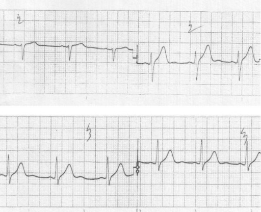 ECG obtained after clinical improvement showing reversal of previous changes .