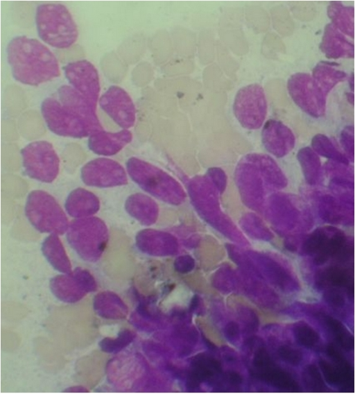 FNAC from the lesion in Case 1 showing the small round blue cells (×400 magnification).