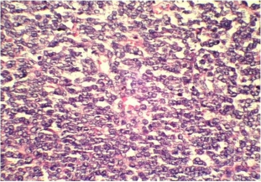 Histopathlogical examination of the biopsy in Case 2 showing sheets of small round blue cells (×400 magnification).