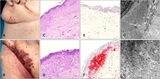 Plasmocytoma-induced intertriginous amyloid purpura. Inframammary (A) and inguinal (B) purpura. (C, D) Subepidermal amorphous eosinophilic material (H&E, ×40). In-situ hybridization for kappa (E) and lamba (F) light chains (×40). Only lambda light-chains were found. (G) Electron microscopy revealed amyloid (left part of the image) next to collagen fibers (right part of the image) (in situ hybridization for immunoglobulin light chains, ×10,000). (H) Amyloid fibrils (in situ hybridization for immunoglobulin light chains, ×20,000).