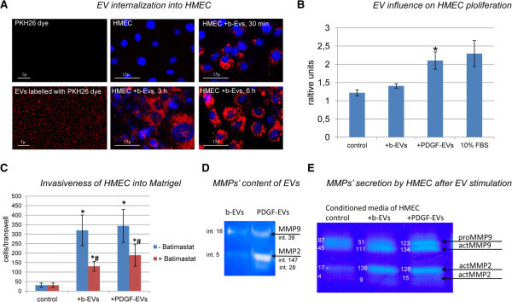 EV effect on HMEC. A: representative confocal microphotography of 100k total EVs labelled with PKH26 dye (red), and HMEC (nuclei are blue) incubated with EVs for 30 minutes, 3 and 6 hours; four experiments were done with similar results; B: diagram of HMEC proliferation in response to b-EV or PDGF-EV addition; 10% FBS was used as positive control (mean ± SEM, * p < 0.05 vs. non-stimulated control HMEC, n = 6); C: diagram of HMEC invasiveness into Matrigel after b-EV or PDGF-EV stimulation in presence (red column) or absence (blue column) of the MMPs inhibitor Batimastat (mean ± SEM, * p < 0.05 vs. non-stimulated HMEC, # p < 0.05 stimulation in the presence of Batimastat vs. absence of Batimastat, n = 12); D: representative zymography of b-EVs and PDGF-EVs; intensity of MMP2 and MMP9 bands are indicated; E: representative zymography of conditioned media of HMEC 24 hours after b-EV or PDGF-EV addition; proMMP-9 (92 kD), active MMP-9 (82 kD), proMMP-2 (72 kD) and active MMP-2 (62 kD) are present; the intensity (itn.) of bands is indicated.