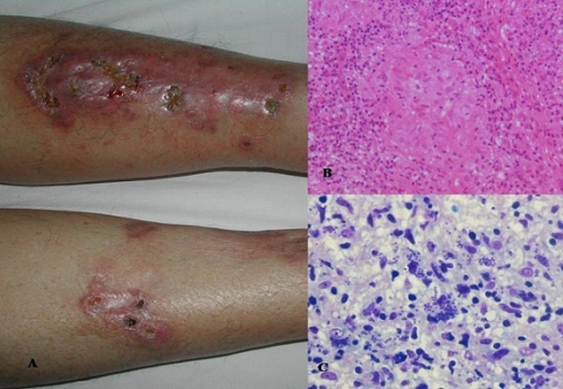 (A): a large erythematoviolaceous plaque scattered by small necrotic, crusted ulcers and small atrophic scars on the right leg. Similar smaller lesions on the left leg. (B): dense lymphocytic infiltrate throughout the entire dermis admixed with multiple granuloma without necrosis (Hematoxylin and eosin stain, x 100). (C): Basophilic regular structures in the intracellular spaces corresponding to amastigotes belonging to leishmania (Giemsa stain)