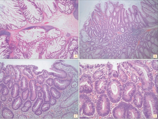 Microscopic findings. (A) Typical hamartomatous polyps characterized by tree-like branching bands of smooth muscle with normal surrounding hyperplastic epithelium (H&E, ×10). (B) Dysplastic change of Fig. 4D (H&E, ×40). (C) Proliferation of neoplastic epithelial cells with nuclear hyperchromasia and pseudostratification (H&E, ×100). (D) Marked increases in mitosis and nuclear pseudostratification in the basal half of the epithelial cells (H&E, ×200).