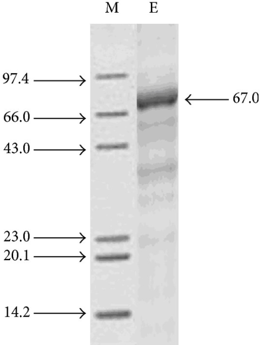 Photographic representation of the SDS-PAGE of amylase of Bacillus tequilensis. Lane 1: marker proteins; lane 2: enzyme supernatant (amylase). Molecular weights were presented in the form of kDa.