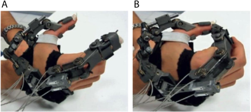Hand exoskeleton for grasping motions. The illustrated device was developed by The BioRobotics Institute (Scuola Superiore Sant'Anna, Pisa, Italy) to perform opening and closing motions of a hand [2]. A) full opening position. B) full closing position.