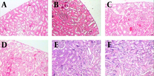 Light Microscopy of Kidney Specimens (H & E, ×100) From Groups 2 Through 7, RespectivelyThe normal appearances of renal tissue sections from group 1 are not shown. For detailed explanation about different groups see text. A, Group 2 (O2 + Saline), normal. B, Group 3 (6hO2 48hLCP), almost normal. C, Group 4 (7dayO2 48hLCP), sever acute tubular necrosis (ATN). D, Group 5 (7dayO2 72hLCP), sever ATN. E, Group 6 (7dayO2 7dayLCP), mild ATN. F, Group 7 (Air + CP) almost severe ATN.