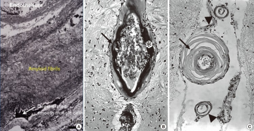 CAA and CAA-associated vasculopathies. Massive amyloid deposition of amyloid fibrils with degeneration of smooth muscle cells in the media (A). Microaneurysmal dilatation (arrow) with fibrinoid necrosis (*) (B). Thickening of the intima (arrow) and double barreling of vascular walls (arrowheads) (C). (A, electron micrograph, bar=1 µm; B, Congo red, original magnification 110×; C, Congo red, original magnification 170×).