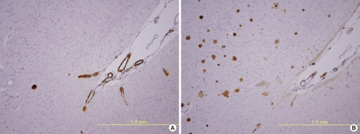 Immunohistochemistry of adjacent brain sections with antibodies to Aβ40 (A) and Aβ42 (B). Positive immunoreactivity to Aβ40 is mainly observed in vessel walls (CAA) (A), whereas Aβ42 immunoreactivity is mainly observed in the brain parenchyma (senile plaques) (B).