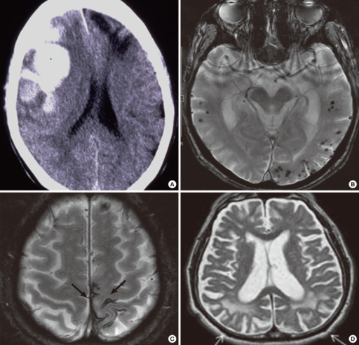 Imaging findings of CAA-related hemorrhages and white matter lesions. Fresh (arrow) and old (arrowhead) lobar macrohemorrhages in the frontal lobes on CT (A). Cortical microhemorrhages with lobar distribution (B) and focal subarachnoid hemorrhages (superficial siderosis) (C) on gradient echo T2*-weighted MRI. Posterior distribution of white matter hyperintensities (arrows on T2-weighted MRI) (D).