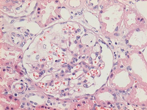 Detail of a glomerulus showing a segmental area of scarring located at the tip with adhesions to the Bowman's capsule. Foam cells are present within the sclerosed capillary loops. The remaining glomerular tuft shows open capillary loops without endocapillary hypercellularity (HE staining and ×200).