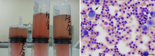 Bloody gross appearance (left) and microscopic findings (right) of bronchoalveolar lavage fluid specimens. Right May-Giemsa-stained cytospin preparation showing numerous red blood cells and neutrophils, consistent with the diagnosis of alveolar hemorrhage. Arrows macrophages. Scale bar 50 μm.