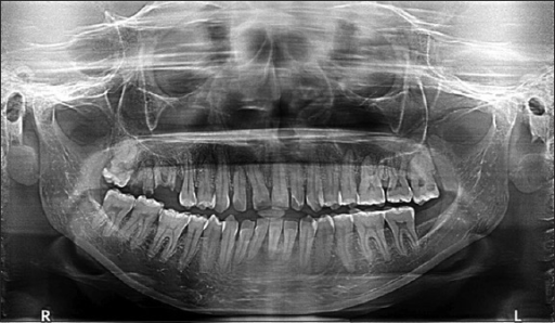 Orthopantomogram showing interdental bone loss between second premolar and first molar