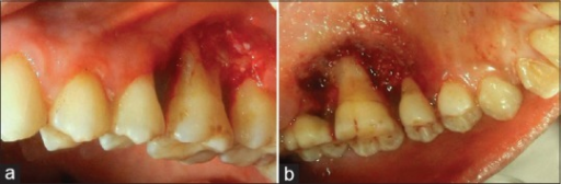 (a) Postexcision after laser cauterization (buccal view); (b) postexcision after laser cauterization (palatal view)