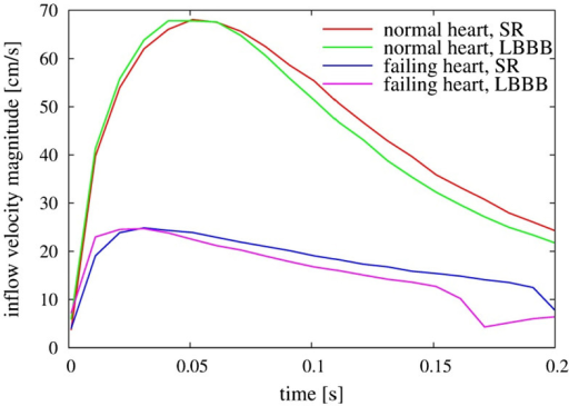 Comparison of inflow velocity magnitude measured at the center of the mitral annulus as a function of time for the four heart models. SR, sinus rhythm; LBBB, left bundle branch block.