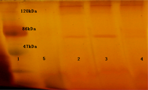 SDS-PAGE analysis of the expression of the GuHMGR gene. Lane 1: marker; lanes 2–4: recombinant P. pastoris containing the GuHMGR gene; lane 5: negative control.