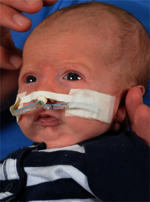 Use of a nasopharyngeal airway as conservative treatment option in a 1-month-old infant with RS