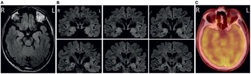 Axial (A) and coronal (B) fluid-attenuated inversion recovery (FLAIR) images showing bilateral volume and signal increase in amygdala and anterior hippocampus. Correspondingly, cerebral fluor-18-deoxyglucose-positron emission tomography/computed tomography (FDG-PET/-CT) revealed hypermetabolism of the right anterior mesial temporal lobe (C).