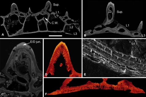 Histology of Loricopteraspis serrata. NRM‐PAL C.5939, SEM BSE section through the cephalothoracic shield (A); NRM‐PAL C.5940, SRXTM section through a scale unit (B); NRM‐PAL C.5941, SEM BSE section through a tubercle, showing the enemeloid capping layer (C); NRM‐PAL C.5940, SRXTM volume rendered virtual thin section of a tubercle, showing the arrangement of dentine canaliculi radiating from a pulp canal (D); NRM‐PAL C.5942, etched SEM section through a wall of L2, showing homogenous core and lamellar margins pervaded by an orthogonal fabric of thread‐like spaces (E); NRM‐PAL C.5940, SRXTM volume rendered virtual thin section of L3, showing Sharpey's fibres trending in two principal orientations (F). Sup., superficial layer; L1, layer 1; L2, layer 2; L3, layer 3; C.W., incomplete cross wall; E/D jun., Enameloid/dentine junction. Scale bar equals 606 μm in (A), 227 μm in (B), 179 μm in (C), 55 μm in (D), 30 μm in (E) and 56 μm in (F).