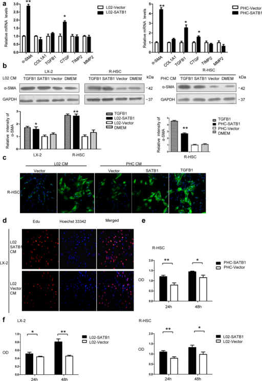 Hepatic SATB1 promotes activation of HSCs.(a) LX-2 cells and rat primary stellate cells (R-HSCs) were cultured for 48 h with conditioned medium (CM) from L02 and rat primary hepatic cells (PHC) transduced with lenti-SATB1 and lenti-ctrl virus. The mRNA extracts were used to analyze α-SMA, COL1A1, TGFB1, CTGF, TIMP1, TIMP2 expression. (n = 3). *P < 0.05, **P < 0.01 vs. L02-Vector or PHC-Vector. (b) Protein levels of α-SMA were analyzed from LX-2 and R-HSC cells after incubation with CM from lenti-SATB1 or lenti-ctrl expressing L02 cells (L02-SATB1, L02-Vector) and PHC cells (PHC-SATB1, PHC-Vector). *P < 0.05, **P < 0.01 vs. L02-Vector or PHC-Vector. Full-length blots are included in the Supplementary Fig. S9. (c) R-HSCs were cultured for 48 h with CM obtained from hepatocytes expressing enhanced SATB1 or control, and α-SMA expression was determined by immunofluorescence analysis. (d) LX-2 cell proliferation was detected by EdU assay after incubation with CM from SATB1 expressing L02 cells for 48 h. LX-2 and R-HSCs cell proliferation were determined by cell counting kit-8 (CCK8) after incubation with CM from SATB1 expressing PHC (e) and L02 cells (f) for 48 h (n = 3). *P < 0.05, **P < 0.01 vs. L02-Vector or PHC-Vector.