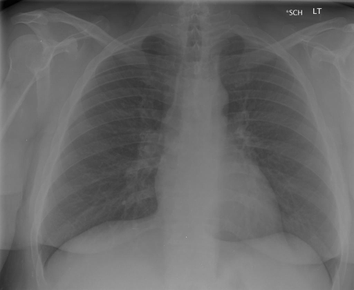 PA and lateral chest radiographs XXXX at XXXX hours.