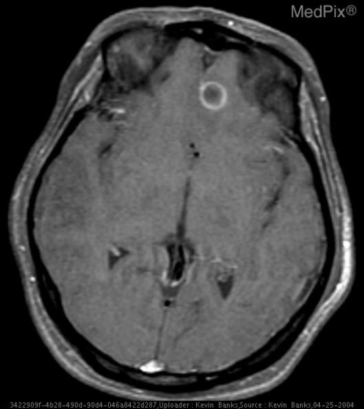 Axial post-contrast T1 weighted image with fat saturation technique shows rim enhancement of the intraparenchymal lesion in the left frontal lobe.