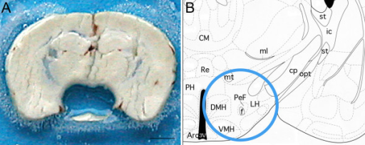 Illustration of the extent of tissue collection. A: Photograph of a frontal 400 μm-thick section of a mouse brain at the level of the hypothalamus. The hypothalamus, centered on the perifornical nucleus was collected bilaterally using a trocard of 1 mm diameter. Scale bar = 1 mm. B: Schematic drawing of the section presented in A and extracted from the mouse atlas of G Paxinos & KB Franklin, (+1,98 mm interaural). The blue circle highlights the extent of the brain area taken off. 3V: third ventricule; Arc: arcuate nucleus; CM: centro-medial thalamic nucleus; cp: cerebral pedoncule; DMH: dorsomedial hypothalamic nucleus; f: fornix; ic: internal capsule; LH: lateral hypothalamic area, ml: median lemniscus; mt: mammillothalamic tract; opt: optic tract; PeF: perifornical nucleus; PH: posterior hypothalamic area; Re: thalamic reuniens nucleus; st: stria terminalis; VMH: ventromedial hypothalamic nucleus.