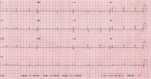 12-lead ECG from a 54-year-old male with syncope and hypotension.