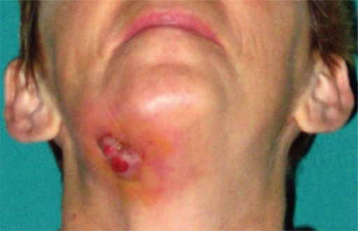 Cutaneous fistula in patient treated with Aredia® and Zometa® for 24 months (48 years old, female, breast cancer).