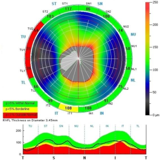 Abnormal thinning in 3 of 4 segments in the temporal quadrant of the right eye in a patient with XLRS. A single segment is abnormal in the inferior quadrant.