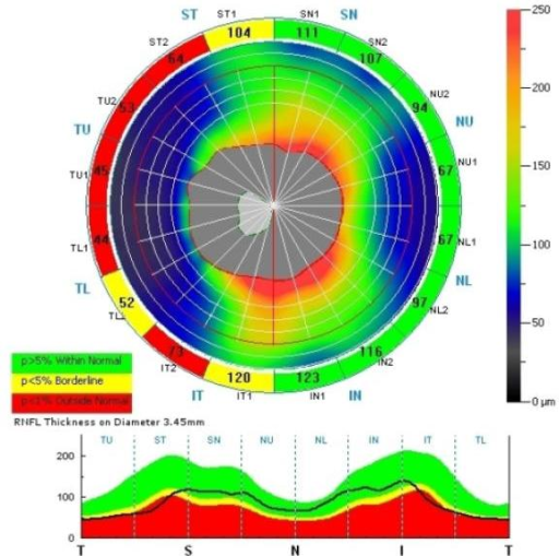 Thinning of the superior, inferior, and temporal quadrants of the RNFL in the right eye of a patient with XLRS. All 4 segments in the temporal quadrant are thin while 2 of 4 in the superior and inferior quadrants are thin.