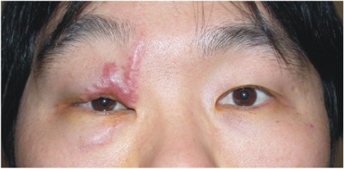An erythematous firm mass is visible along the upper and lower eyelid scar.