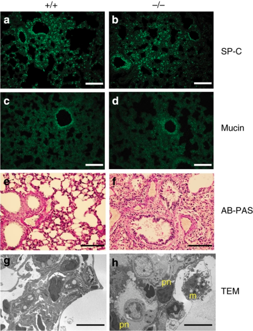 Lung phenotype of surviving Nedd4-2−/− mice is not due to altered surfactants or mucous.(a, b) Surfactant Protein-C expression in P14 lung. (c, d) Mucin expression in P14 lung. (e, f) Alcian-blue/periodic acid-Schiff (AB-PAS) staining mucopolysaccharides in P21 lung. (g, h) TEM of P19 lung, with pyknotic nuclei (pn) and a macrophage (m) indicated. Scale bars represent 100 μm except in g, h where it represents 10 μM.