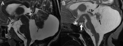 Midsagittal T2-weighted MR images of a 22-year-old woman (A) and a 2-day-old neonate (B), modified from Poretti A et al, AJNR, 2008, with permission) with OFD VI reveal an enlarged posterior fossa with marked retrocerebellar CSF collection. Additionally, in both patients the brainstem appears dysmorphic: in A the midbrain is thickened, the tectum dysplastic (white arrow head), and the pons short; in B there is elongation of the mesencephalon, reduced size of the pons, and dysplasia of the tectum (black arrow head). In both patients the cerebellar vermis is hypoplastic and its remnants are dysplastic (black arrow in B), the massa intermedia is prominent, and in B a hypothalamic hamartoma is seen (white arrow) and the pituitary stalk appears thickened (white arrow head).