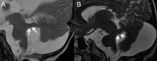 Parasagittal T2-weighted MR images of a 5-month-old infant (A) and a 22-year-old woman (B) with OFD VI. In JSRD the SCP (white arrows) have a characteristic horizontal sagittal orientation (A). In some patients with OFD VI, however, the SCP (white arrows) have a clearly ascending orientation (B).