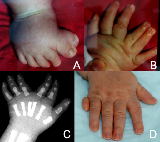 A, preaxial poly-syndactyly of the right foot, B, mesoaxial polydactyly of the right hand, C, X-ray of the left hand showing a Y-shaped third metacarpal bone, and D, postaxial polydactyly of the right hand.