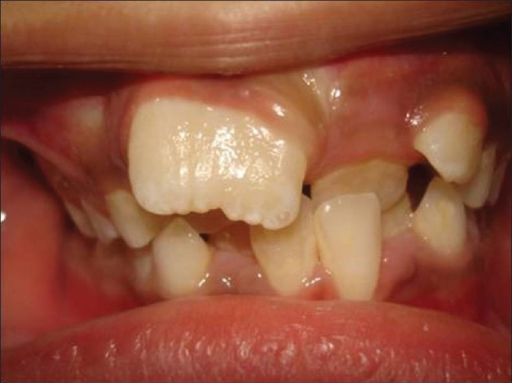 Tooth Number 11 Presented With Wide Crown And Incisal N Open I