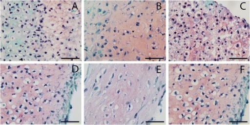 Safranin O staining of newly formed tissue by healthy, cartilage defect and osteoarthritis chondrocytes. Safranin O staining of newly formed tissue after redifferentiation of chondrocytes on type II collagen-coated filters after 28 days of culture. (A) Nonexpanded healthy chondrocytes, (B) nonexpanded cartilage defect chondrocytes, (C) nonexpanded osteoarthritic chondrocytes, (D) expanded healthy chondrocytes, (E) expanded cartilage defect chondrocytes, and (F) expanded osteoarthritic chondrocytes.