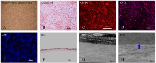 Construction of rabbit corneal epithelium tissue-engineered with acellular conjunctiva matrix.Rabbit primary limbal epithelial cells proliferated well at day 7 (A). Trypan blue-alizarin red staining showed that the cells maintained live activity and grew to confluence (B). The cells could be labeled with CM-Dil (red fluorescence) (C) and stained positive with anti-K3/12 (D). Negative control lacks primary antibody (E). The rabbit corneal epithelial cells formed a 2–3 epithelial layer structure after culture for 14 days, as confirmed by H.E. staining (F) and TEM observation (G). There were tight junctions between cells and the aCM scaffold (H). Scale bar: 100 µm (D, E), 50 µm (B, C, F), 5 µm (G) and 1 µm (H).