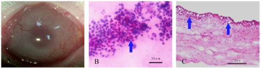 Construction of a rabbit limbal stem cell deficiency model.Representative slit-lamp photograph of rabbit cornea showed significant opacity and neovascularization after 1 month (A). PAS staining in which goblet cells are easily observed in corneal impression cytology (B). Signet ring goblet cells (arrow) were also revealed by H.E. staining of corneal sections (C). Scale bar: 10 µm (B) and 50 µm (C).