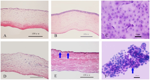 Corneal H and E staining and impression cytology after transplantation of tissue-engineered corneal epithelium.Restoration of corneal epithelium began at day 7 after transplantation with reconstructed corneal epithelium on aCM (A). Normal morphology was observed at day 30 (B) with no goblet cells (C), whereas the group that received reconstructed corneal epithelium on dAM exhibited defective corneal epithelium at day 7 (D) and goblet cells (arrow) were still observed at day 30 (E, F). Scale bar: 100 µm (A, B, D, E) and 10 µm (C, F).