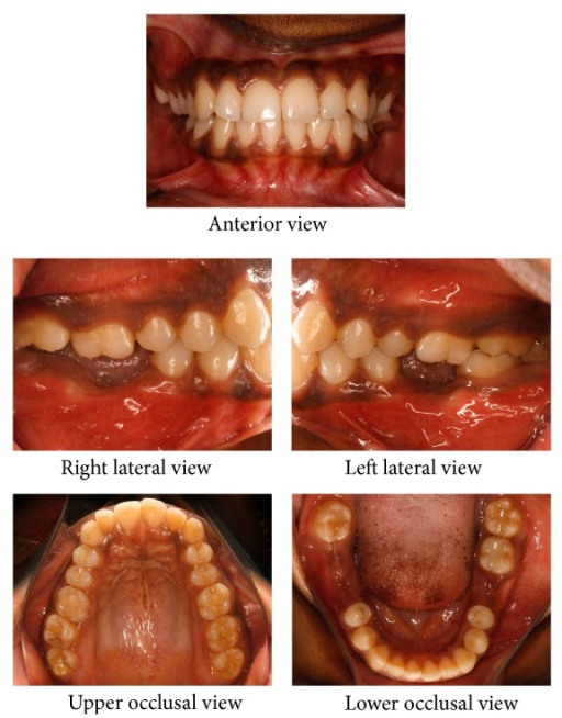 Pretreatment intraoral photographs.