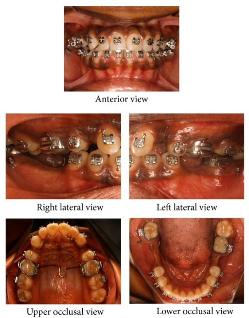 Mid-treatment intraoral photographs: alignment stage with microimplants for lower anterior retraction.
