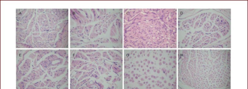 Morphology of C3-6 myelinated nerve fibers in rats of each group (hematoxylin-eosin staining, light microscope, × 400).(A) C3 in normal control group; (B) C3 in experimental group at 3 months; (C) C3 in experimental group at 6 months; (D) C4 in normal control group; (E) C4 in experimental group at 3 months; (F) C4 in experimental group at 6 months; (G) C5 in normal control group; (H) C6 in normal control group.